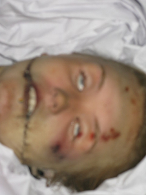 Famous dead celebrities autopsy